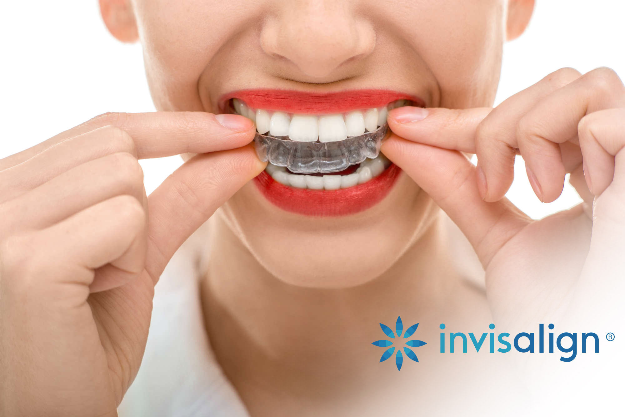 Invisalign (Clear Braces)