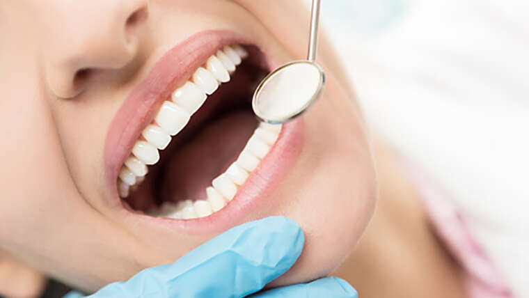 Advantages of Having White Tooth Fillings