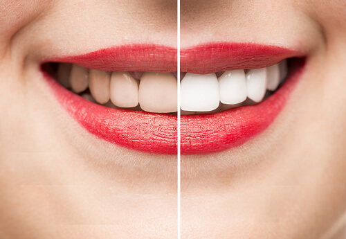 Cosmetic Dentistry, a smile makeover