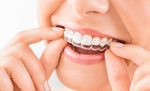 Invisalign Dentist in Coventry